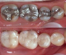 Before%20and%20after%20cerec%20photo