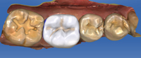 cerec%20case%20part%202