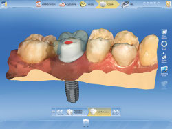 cerec%20implant%20design