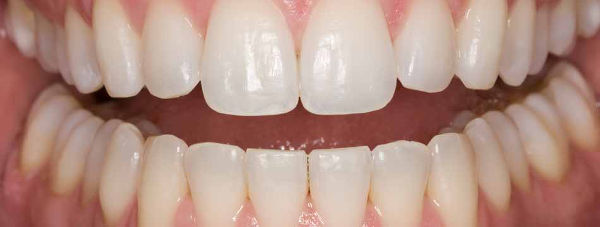 Whitening%20after