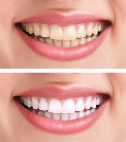 teeth-whitening-before-after%20IMAGE%206